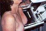 La provincia de Las Palmas, a la cabeza de España y sur de Europa en casos de cáncer de mama